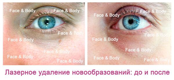 Удаление родинок, бородавок, папиллом в Красноярске, цена на услуги